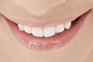 温州加美美容医院 爱上笑容从牙齿矫正开始