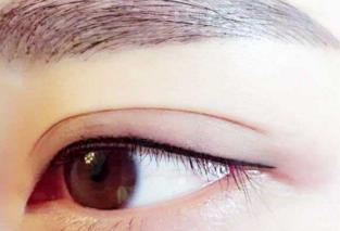 超声法去眼袋价格多少 深圳雅美整形医院去眼袋贵吗