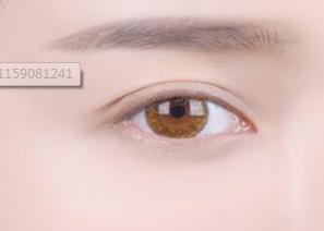 郑州曼蒂整形医院开眼角多久能恢复 让小眼变美