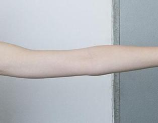 手臂吸脂减肥步骤 银川海鹰整形医院手臂吸脂怎么样