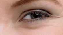 佛山佳丽整形医院做双眼皮的能消除眼部脂肪吗 摆脱泡肿眼