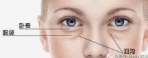 十堰中爱铭医整形医院怎么通过手术去除眼袋 有哪些优势