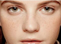 新疆华美国际整形医院光子嫩肤安全吗 手术有哪些优点