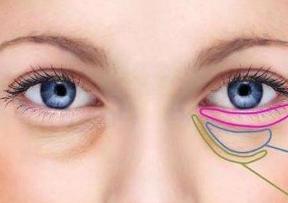 广州康华清吸脂去眼袋效果好吗 去眼袋有失败的案例吗