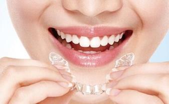 郑州拜博口腔医院隐形牙齿矫正5点好处 牙齿矫正有危害吗