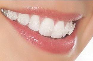 上海圣贝做冷光牙齿美白需要多少钱 大概能保持几年