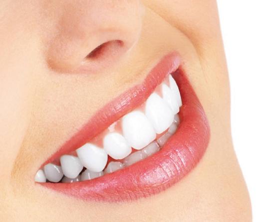 深圳美莱牙齿漂白的效果怎样 让微笑更迷人