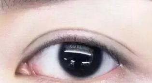 金华亚美【眼部整形】双眼皮/切开双眼皮/为美丽而战