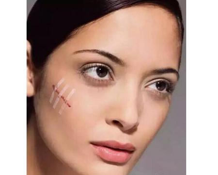 汕头爱丽诺皮肤美容科做激光祛疤多少钱 对哪些疤痕有效