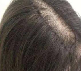 北京联合丽格植发医院头发移植的成功率高不高 告别脱发
