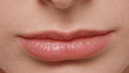 武汉慕尔美整形医院纹唇手术会不会很痛 能保持多久