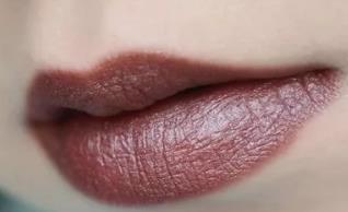 什么是厚唇 北京瑞丽美容整形医院厚唇改薄的价格