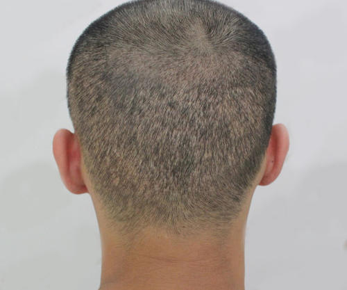 北京武警医院种植头发多少钱 植发后还会脱发吗