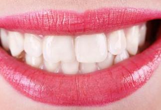 重庆鹏博口腔门诊部牙齿矫正价格 让你获得自信笑容
