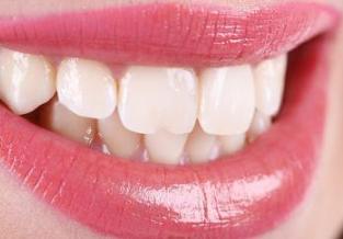 重庆口腔医院排名 烤瓷牙种类有哪几种