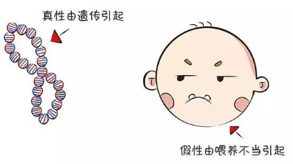 幼儿地包天牙齿防治方法 地包天会遗传吗 地包天矫正