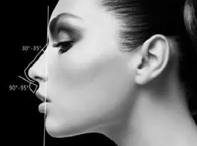 假体隆鼻修复时间有限制吗 杭州婉美整形医院隆鼻修复价格