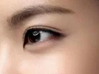 深圳美容医院排名 上睑下垂矫正手术方法有哪些