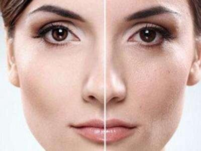 济南佳美整形做彩光嫩肤多少钱一次 效果能维持多久