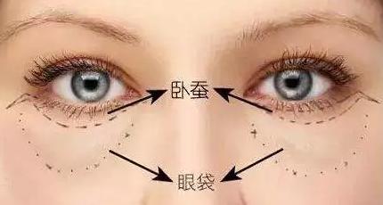 激光祛眼袋好吗 上海新星整形医院去眼袋很有方法