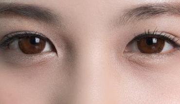 北京优尔整形医院激光祛眼袋的效果如何 享受年轻的感觉