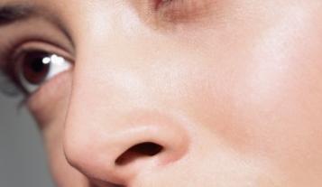 武汉艺星【鼻部整形】肋骨隆鼻/鼻整形/出彩肋骨鼻