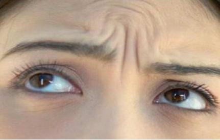长春吉大二院整形科做眉间纹除皱好吗 激光去川字纹多少钱