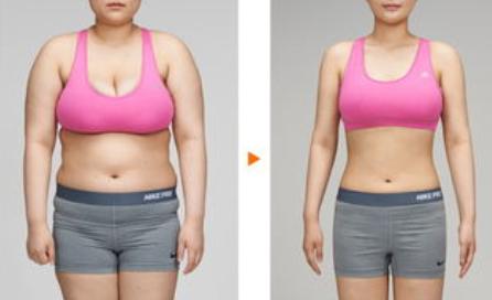 武汉欧华美之术做腰腹吸脂能瘦多少 吸脂需要多少钱