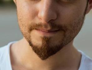 北京武警三院植发整形科胡须种植之后多久恢复 植出男人味