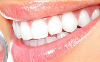 上海圣贝【牙齿整形】牙齿矫正/金属矫正/给你健康牙齿