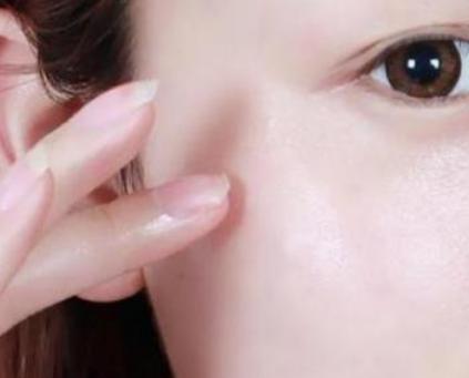 潍坊医学院整形科除皱哪种方法好 注射玻尿酸除皱多少钱