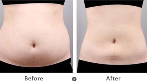 三亚红妆尚整形医院腹部抽脂多少钱 多久能恢复