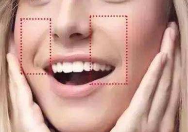 鼻唇沟法令纹怎么去 长沙安吉娜整形医院激光去法令纹效果