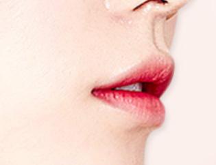 成都元辰整形医院漂唇染料对肌肤会造成影响吗 有什么优点