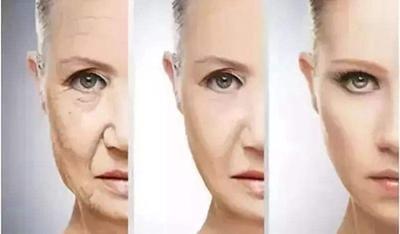 无锡渼璟整形光子嫩肤除皱效果能维持多久 大概要多少钱
