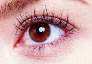 长春爱丽整形医院开眼角术后效果好不好 迷人大眼的诞生