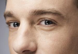 男生什么样的眼睛需要开外眼角 杭州赵正美整形医院怎么样