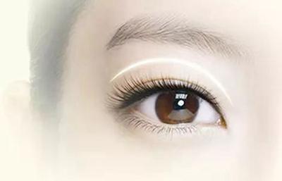 【眼部整形】双眼皮/眼睑矫正 给你魅力大眼睛