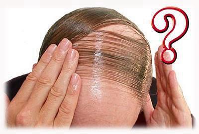 长沙科发源植发价格表 头发种植的价格和什么有关