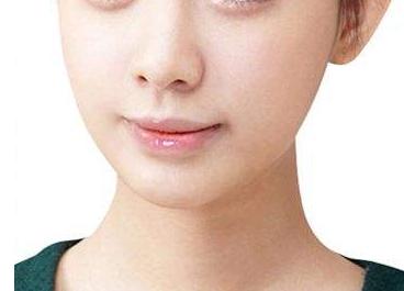 南京极妍整形医院瘦脸哪种方法好 去颊脂垫瘦脸多久见效