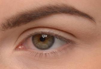 全切双眼皮能修复吗 莱芜艾美整形医院双眼皮修复方法