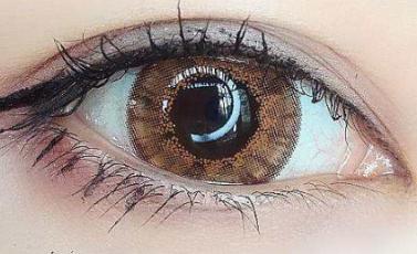唐山艾美医疗整形 双眼皮手术失败后的修复方法