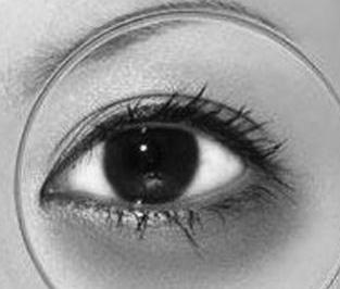 海口伊人整形医院激光去黑眼圈会有伤害吗 手术详细步骤