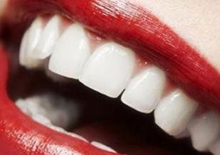 仙桃忆美整形医院唇裂整形需要多次手术吗 效果如何