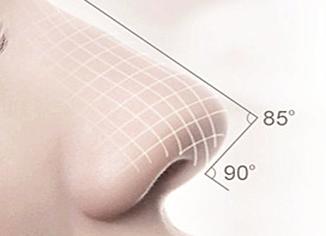 宁波凯丽国际整形医院隆鼻修复术多少钱 隆鼻修复维持多久