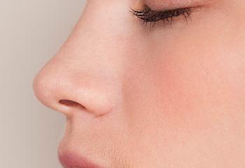 收缩鼻翼整形手术方法 杭州同立整形医院缩小鼻翼价格