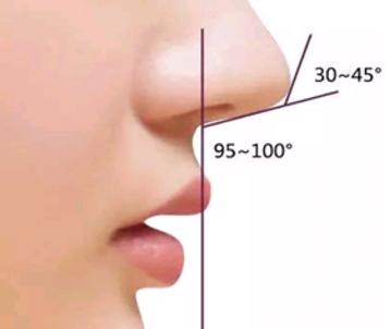 鼻小柱延长术用硅胶材料好吗 哈尔滨哪家做鼻子整形好