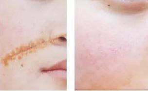 激光祛疤适合所有疤痕吗 北京去疤痕需要多少钱