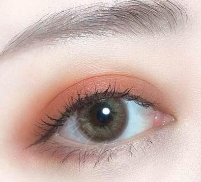 割双眼皮不自然 可以修复吗 重庆双眼皮修复术特点