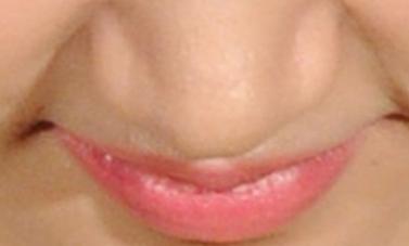 长治天成整形医院漂唇需要多久恢复正常 能保持多久